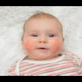 lg-b-peut-on-devenir-allergique-a-nimporte-quel-age