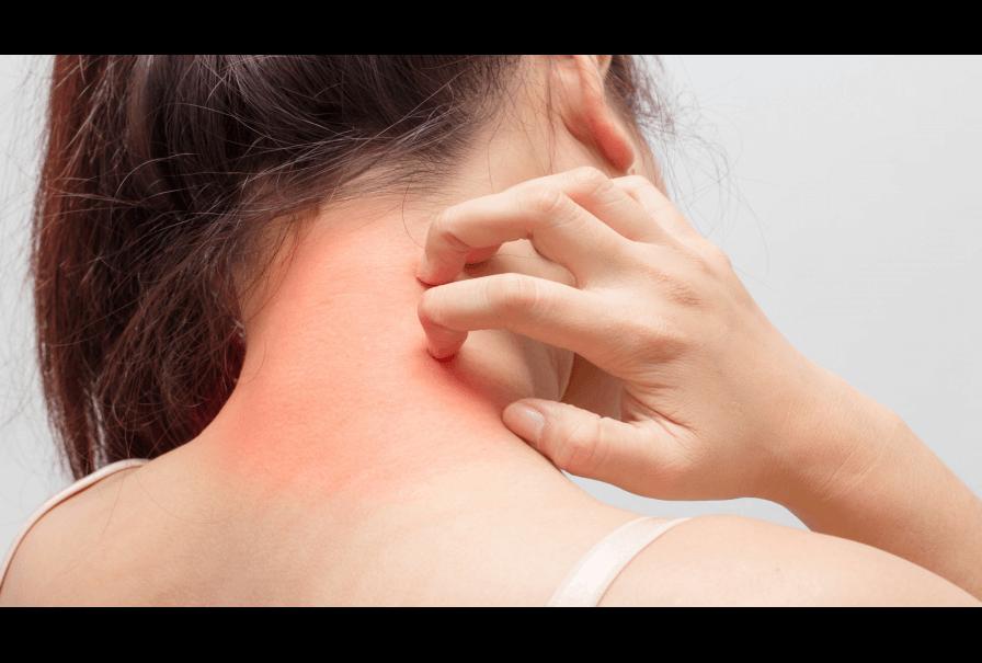 lg-b-quelles-sont-les-allergies-les-plus-frequentes