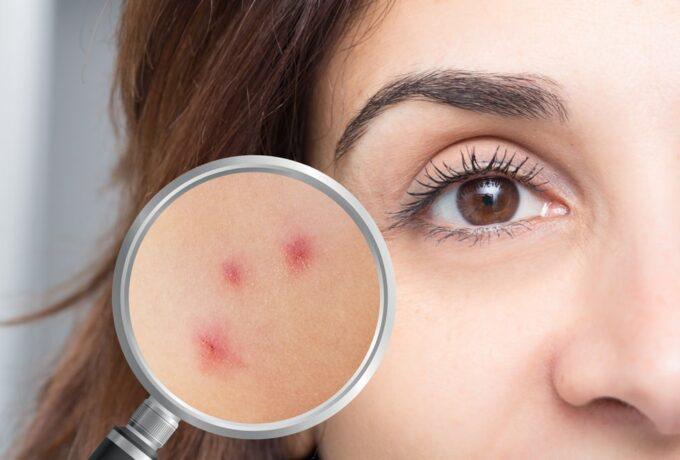 Les symptômes d'une allergie acarien au visage