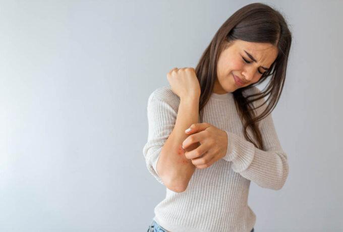 Acariens et démangeaisons, nos conseils pour détecter les symptômes et les soulager